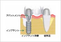 Straumann® Implant
